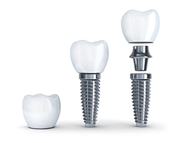Wireframe Single tooth replacement with Dental Implants at BiteLock in the Dallas, TX area.