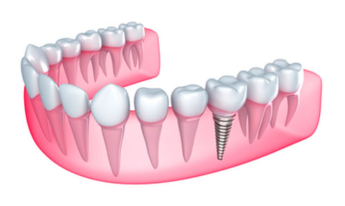 Kids can't get dental implants in Irving,TX